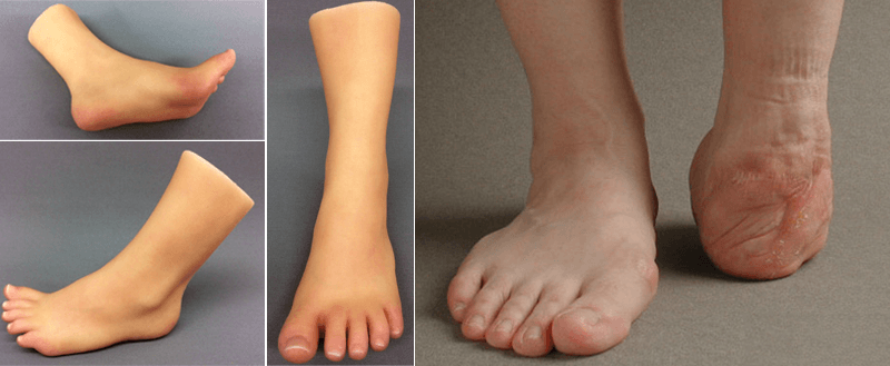foot prothesis